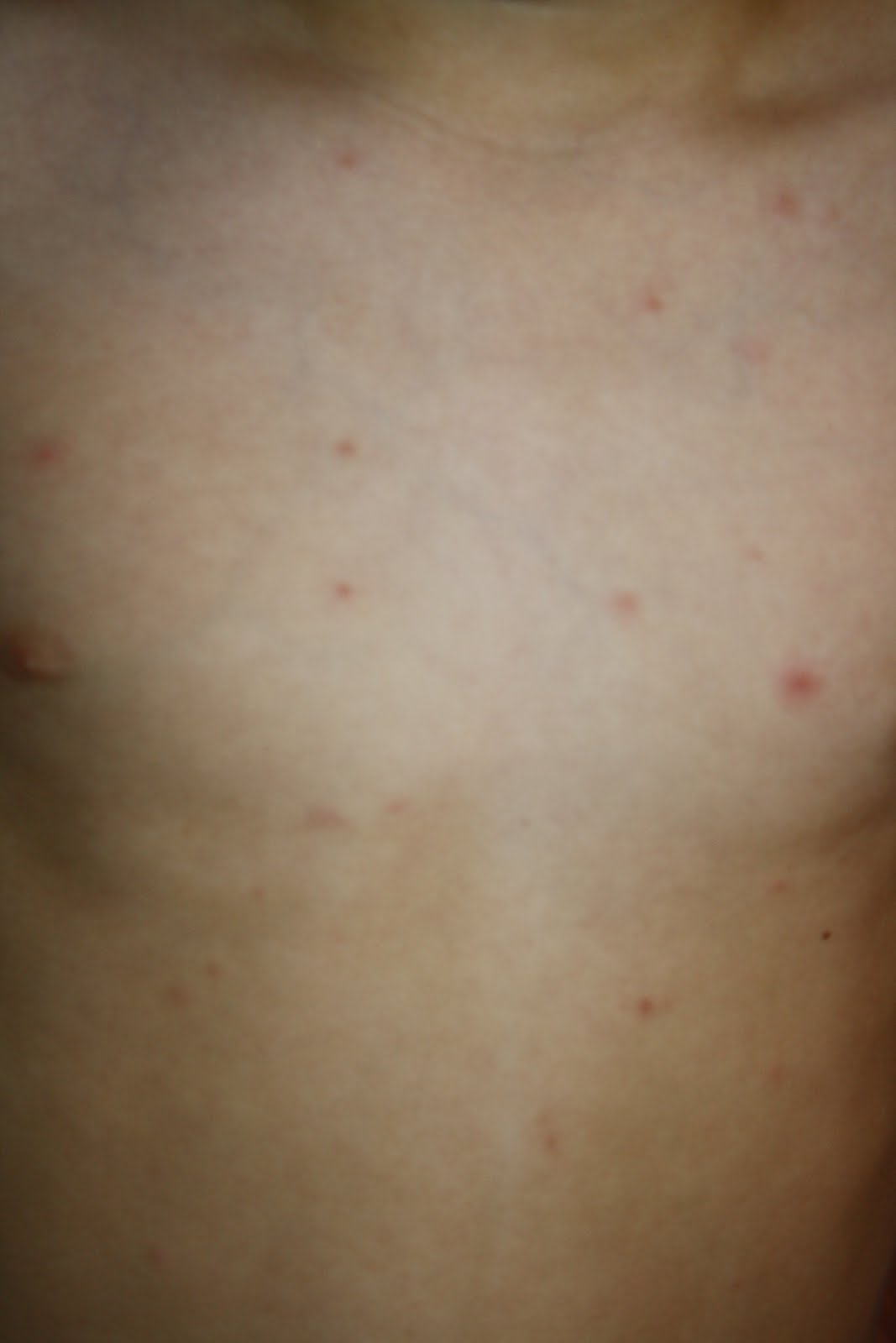 Chicken Pox Early Signs
