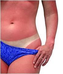 La consommation trop forte d UV entraîne la peau à réagir en faisant une  réaction inflammatoire, une accumulation de sang... Le soleil ... a798d0e00e1e
