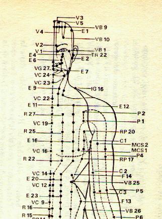 Aquí copia este concepto en Dolor muscular pecho