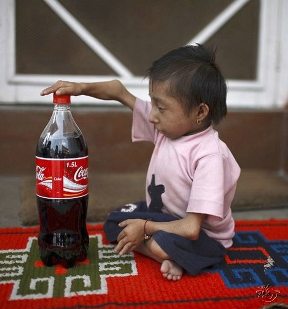 The World's Smallest Man from Nepal: 22ins tall: 16 Pics + Video