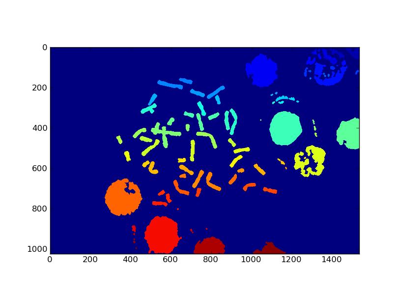 DIP4FISH: Metaphasic chromosomes segmentation under python