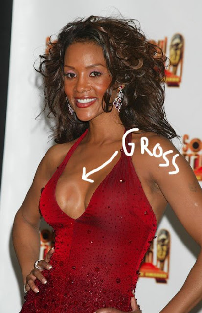 vivica bad plastic surgery