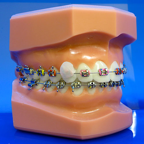 how to use wax for braces