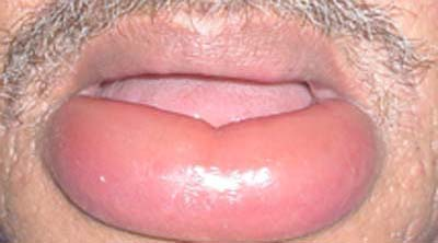 lip Fat bottom