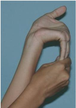 CROMOSOMA PDF X FRAGIL
