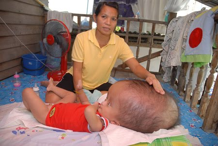 Can Hydrocephalus Be Cured Naturally
