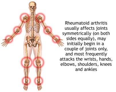 Rheumatoid Arthritis Medication Amp Its Side Effects