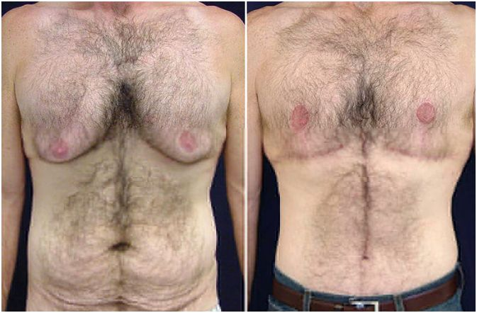 Plastic Surgery for Men: Life After Obesity – How Plastic ...
