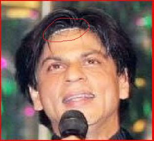 bollywood celebrities plastic surgery and botox bollywood trends the best bollywood site