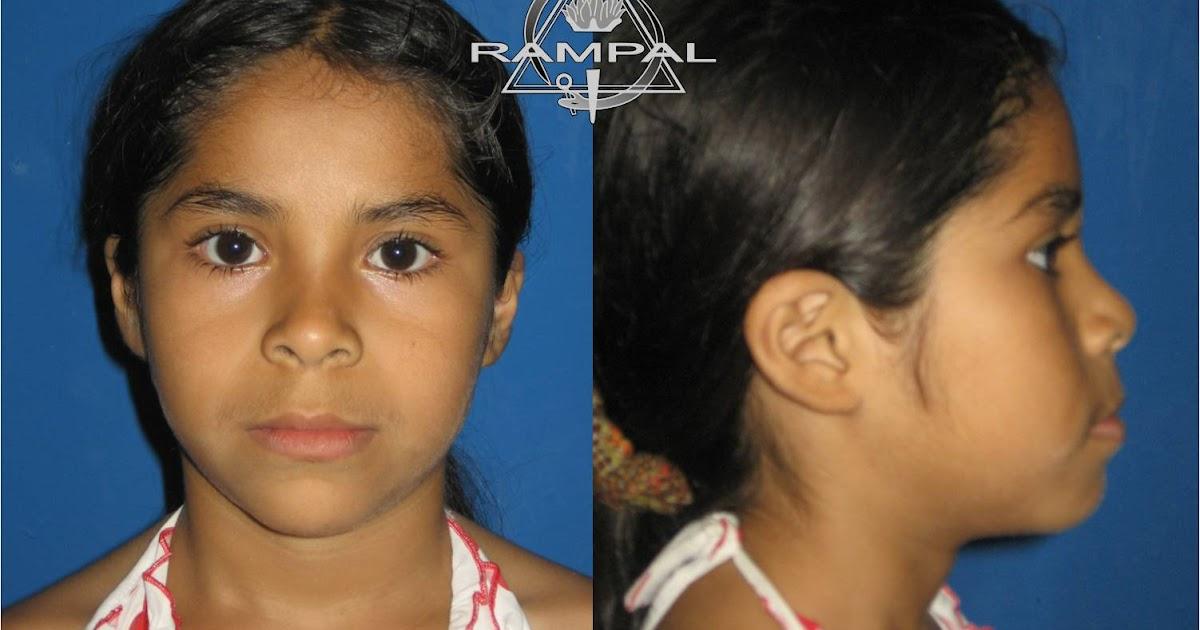 Curso de ortodoncia per rampal ortodoncia caso clinico for W de porter ortodoncia
