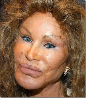 Discount Plastic Surgery On Cheap And Deadly Alternative