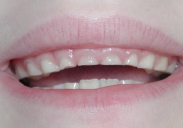 Pediatric Dentistry Chidren Grinding Their Teeth