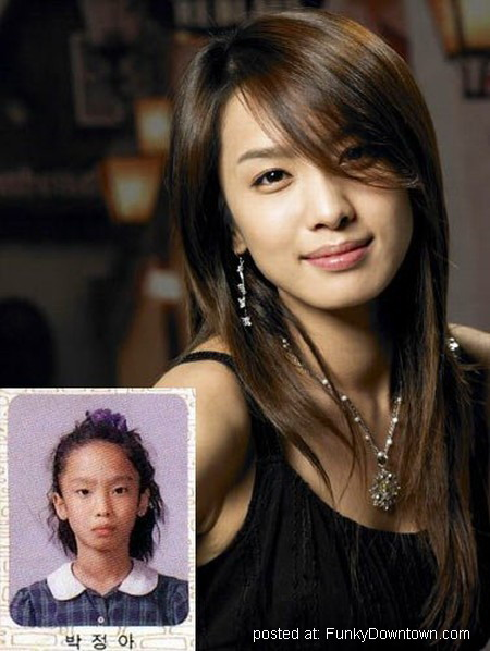 Asian Celebrities Plastic Surgery 66