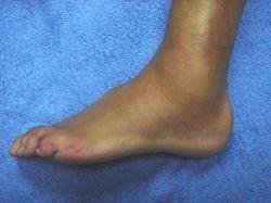 Lesionado tobillo hinchado
