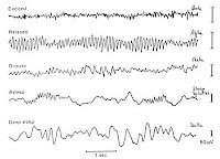 EEG showing alpha, beta and other brainwaves