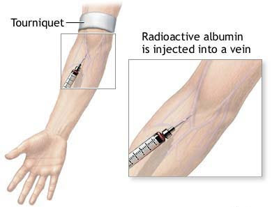 mynsgnotes blogspot com: Intravenous Injection (IV INJECTION)