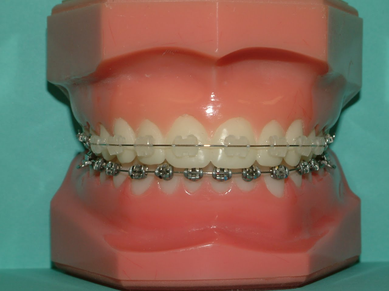 how to make the dentist give you braces